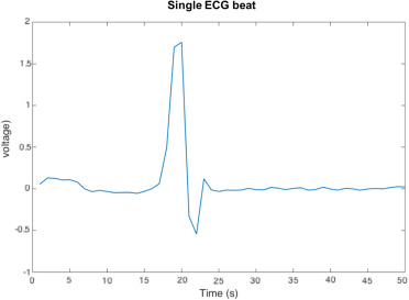 A deep learning approach for ECG-based heartbeat