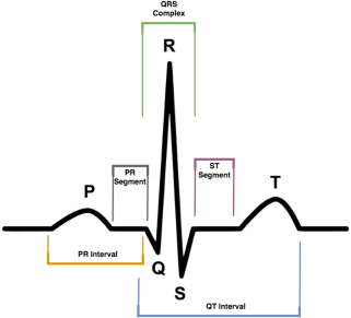 A novel electrocardiogram feature extraction approach for