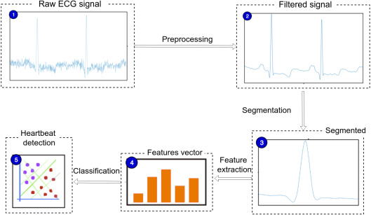 A novel electrocardiogram feature extraction approach for cardiac
