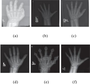 Automatic feature extraction in X-ray image based on deep