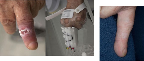 GEC-ESTRO ACROP recommendations in skin brachytherapy