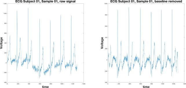 PhysioUnicaDB: a dataset of EEG and ECG simultaneously
