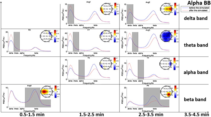 Analysis Of Eeg Activity In Response To Binaural Beats With Different Frequencies Sciencedirect