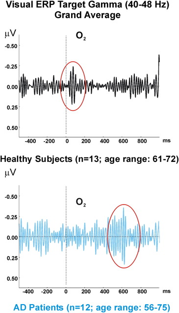 How is the brain working?: Research on brain oscillations and