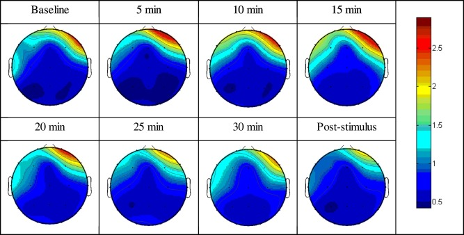 Brain responses to 40-Hz binaural beat and effects on emotion and