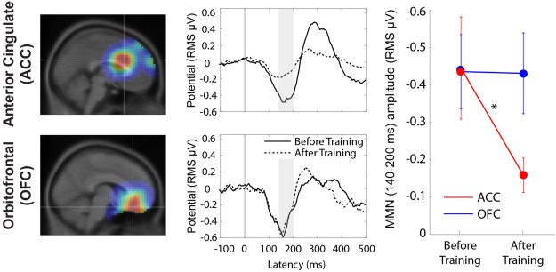 Mismatch negativity reveals plasticity in cortical dynamics after 1