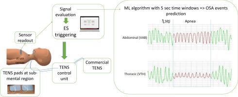 Development of an automated system for obstructive sleep apnea treatment  based on machine learning and breath effort monitoring - ScienceDirect