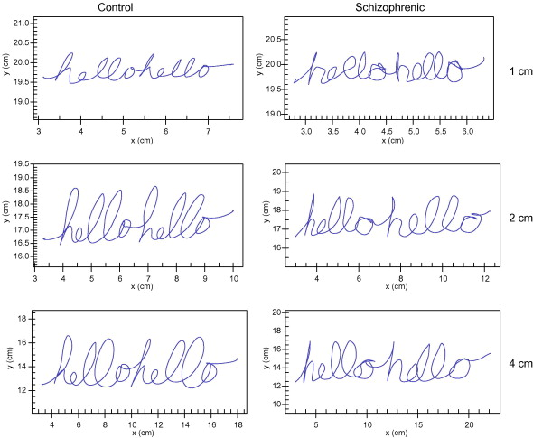 Quantitative measurement of handwriting in the assessment of drug handwriting samples for a single healthy control participant left column and schizophrenia participant with drug induced eps right column for the 1 cm thecheapjerseys Gallery