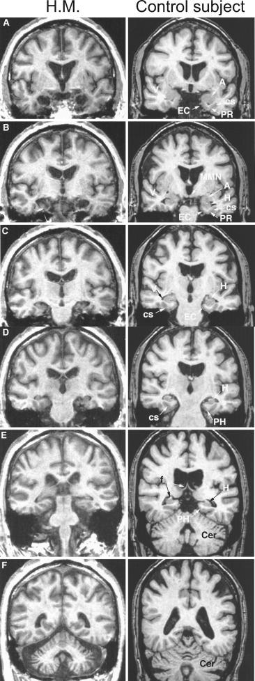 Understanding Brain Mechanisms Of >> Brain Mechanisms Of Visual Long Term Memory Retrieval In Primates