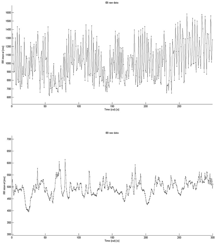 The relationship between heart rate variability and canine
