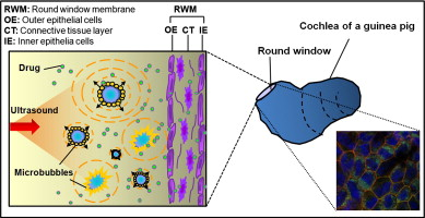 Ultrasound aided microbubbles facilitate the delivery of drugs to schematic diagram showing the application of microbubbles ultrasound on increasing the round window membrane permeability for facilitating drug or ccuart Choice Image