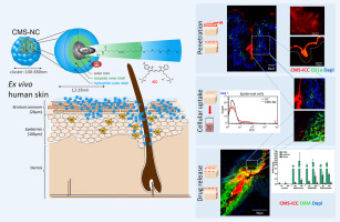 Core-multishell nanocarriers enhance drug penetration and