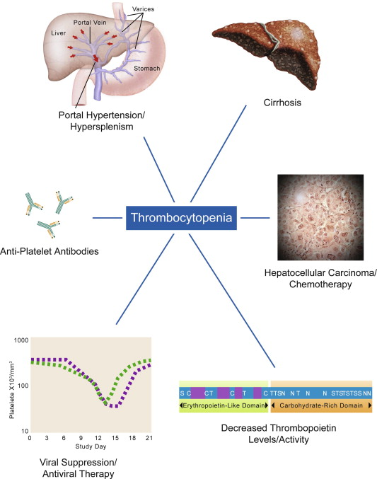 Thrombocytopenia associated with chronic liver disease - ScienceDirect
