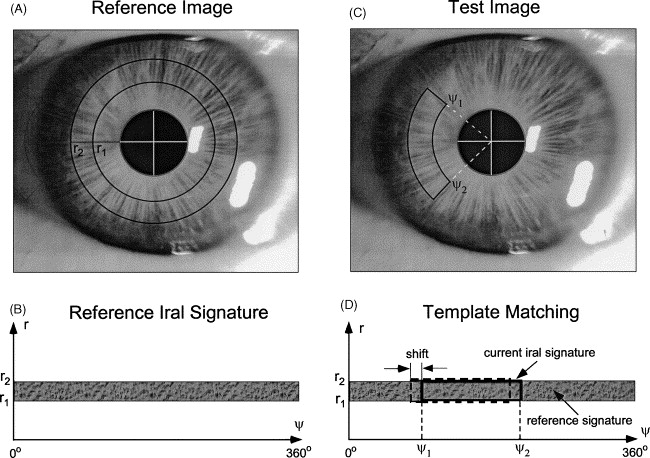 Robust and real-time torsional eye position calculation using a ...
