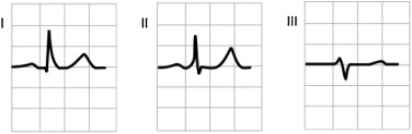 ECG-based heartbeat classification for arrhythmia detection