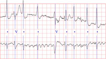 ECG-based heartbeat classification for arrhythmia detection