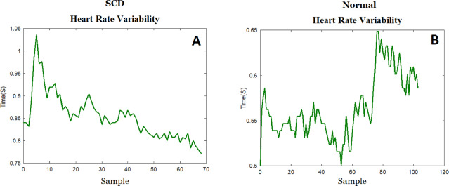 An optimal strategy for prediction of sudden cardiac death through a