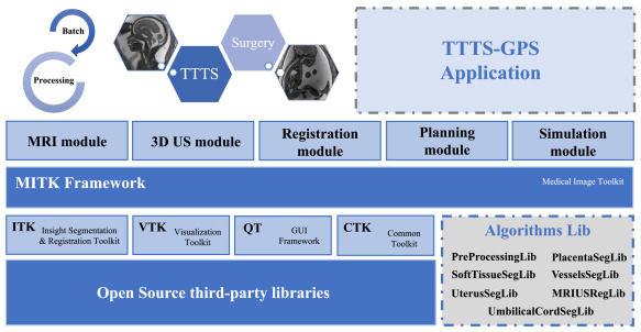 TTTS-GPS: Patient-specific preoperative planning and
