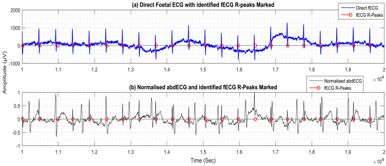 Extraction of foetal ECG from abdominal ECG by nonlinear