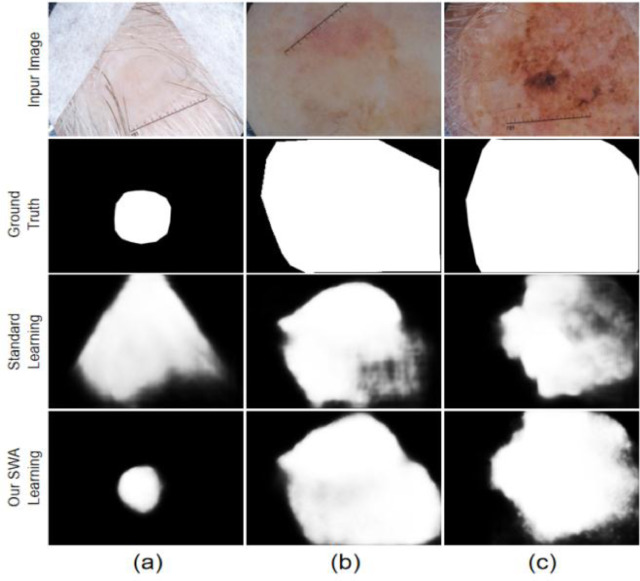 Efficient skin lesion segmentation using separable-Unet with