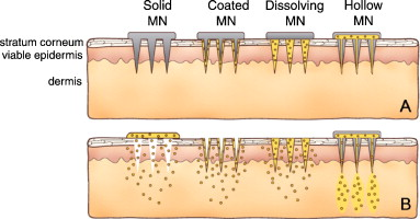 Microneedles for drug and vaccine delivery - ScienceDirect