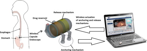 A review of drug delivery systems for capsule endoscopy - ScienceDirect