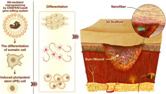 Nanomedicine and advanced technologies for burns: Preventing