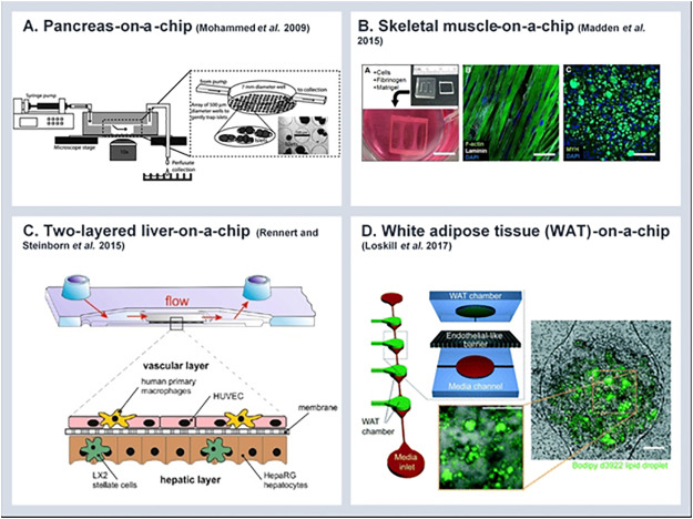 Stem-cell based organ-on-a-chip models for diabetes research