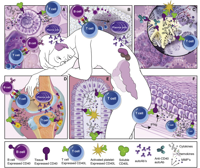Targeting the CD40-CD40L pathway in autoimmune diseases