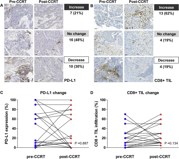 Dynamic changes in PD-L1 expression and CD8+ T cell infiltration in