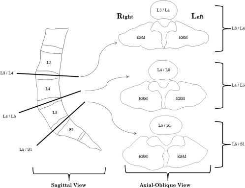 Morphological Investigation Of Low Back Erector Spinae Muscle