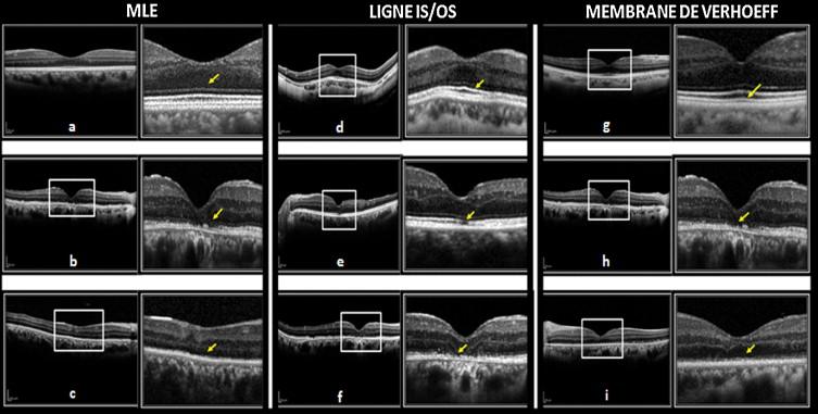 Analyse De La Macula Par Oct Spectral Domain Dans La Chirurgie Du