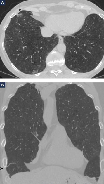 Hpv cancer poumon. Arret maladie papillomavirus, Arret maladie papillomavirus