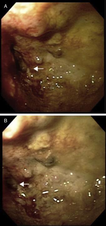 Endoprótesis colónica para el manejo paliativo de la obstrucción ...