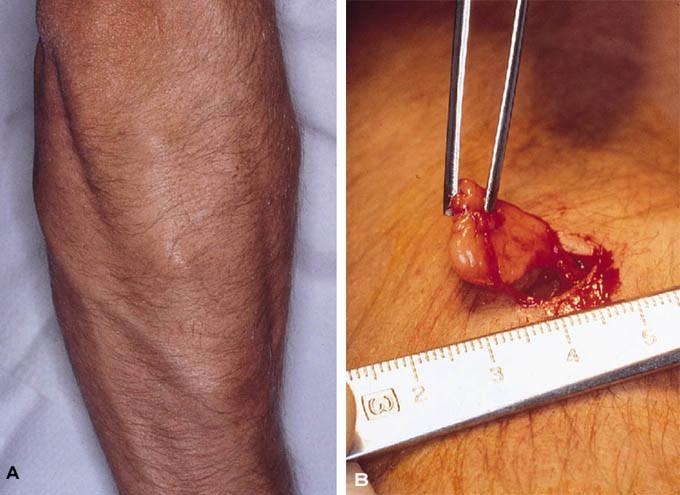 infekterad hårsäck böld