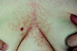 confluent and reticulated papillomatosis treatment during pregnancy