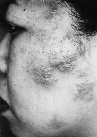 Hiv Seronegative Eosinophilic Pustular Folliculitis