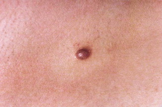 Nodular Melanoma Patients Perceptions Of Presenting Features And