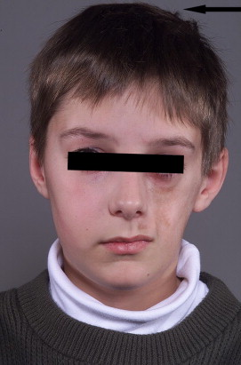 En coup de sabre morphea and Parry-Romberg syndrome: A