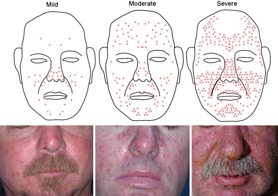 A Prospective Randomized Trial Of Topical Pimecrolimus For Cetuximab Associated Acne Like Eruption Sciencedirect