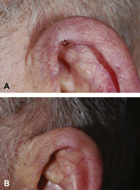 Topical nitroglycerin: A promising treatment option for