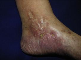 chabret de la varicoză varicoză pe piciorul unui tip