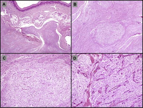 Acquired reactive digital fibroma: A clinicopathologic