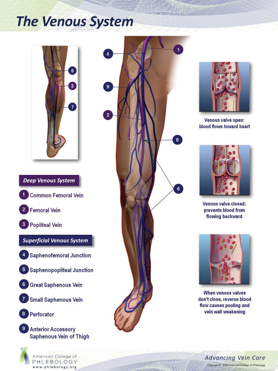 Endovenous Laser Ablation Of The Great And Short Saphenous Veins