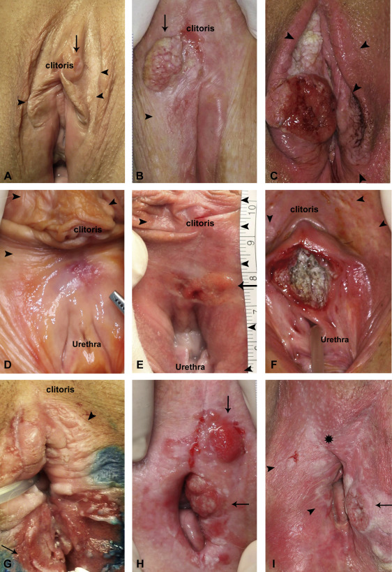 vulva cancers Pictures
