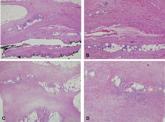 Clinicopathologic And Immunophenotypic Features Of Eosinophilic