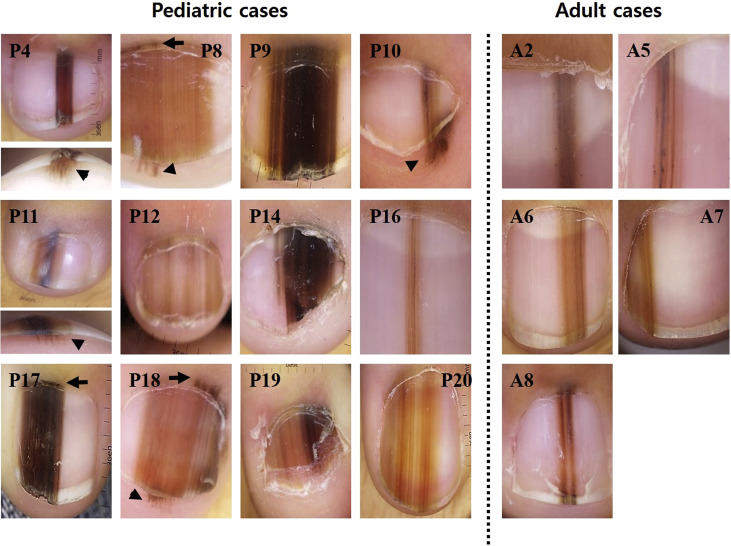 Clinicopathologic features of 28 cases of nail matrix nevi (NMNs) in ...