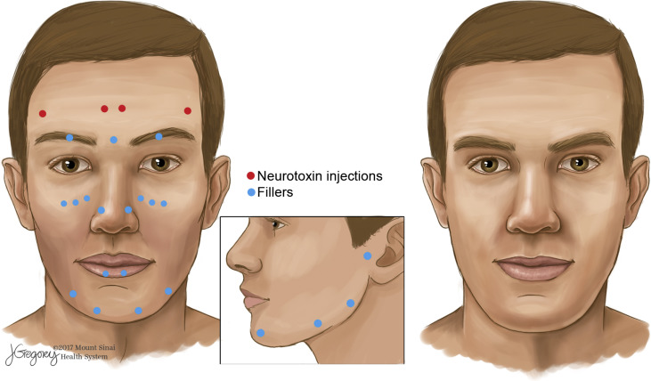 Medical and aesthetic procedural dermatology recommendations