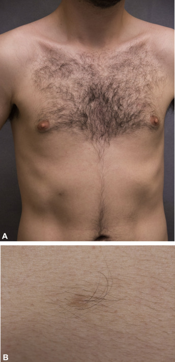 Skin Diseases Of The Breast And Nipple Benign And Malignant Tumors Sciencedirect
