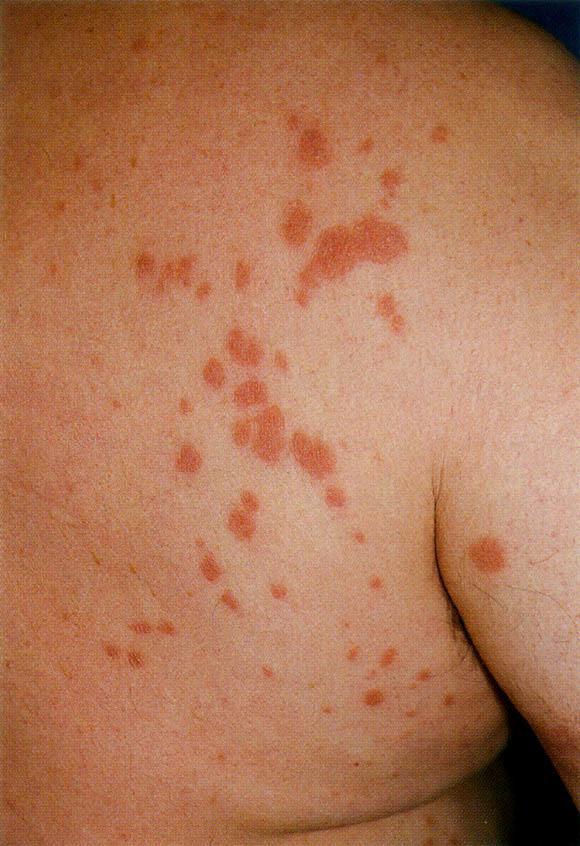 nonneoplastic disorders of the eccrine glands sciencedirect